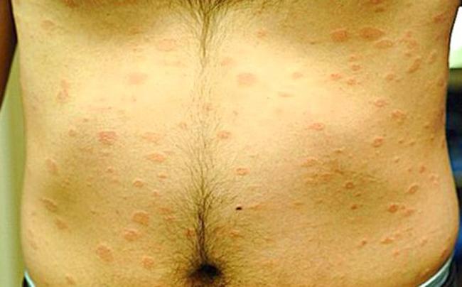 Проявление хламидиоза