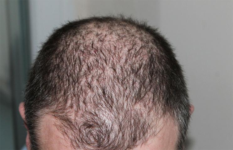 Волосы человека