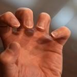Самые интересные факты о ногтях человека