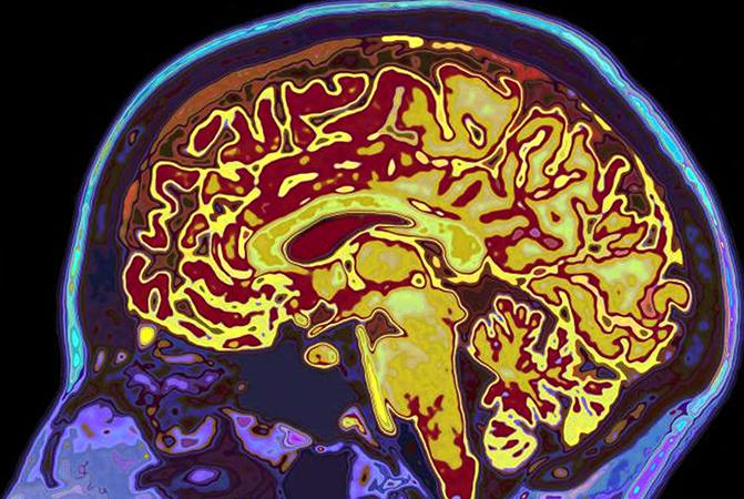 Процессы в мозге